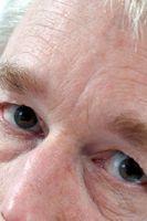 Heilmittel für Säcke unter den Augen