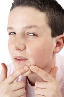 Wie man die Poren der Haut mit Jojobaöl reinigen