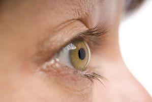 Gewusst wie: Entfernen verstopfte Poren unter Augen