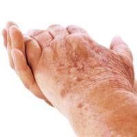 Entfernen von Altersflecken aus Händen