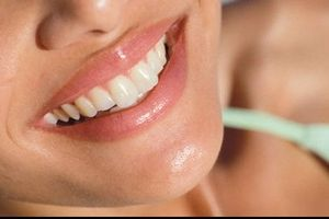 Wie man die Zähne mit elektrische Zahnbürsten weiß