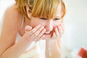 Was sind die Behandlungsmöglichkeiten für schwere Akne?